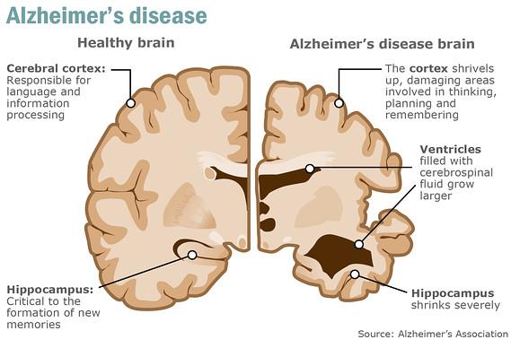 alzheimers_disease